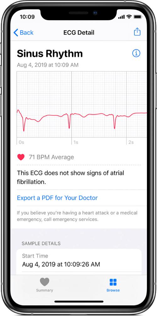 アップルウォッチが読み取った心電図ECG波形