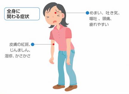 シックハウス症候群の症状、全身症状